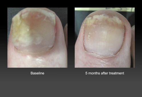 http://www.bazakpodiatry.com
