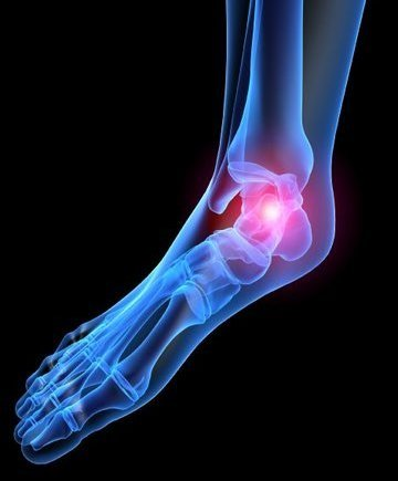 West Hollywood Podiatrist | West Hollywood Heel Pain/Fasciitis | CA | Ilan Bazak DPM Professional Corporation |