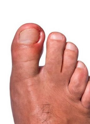 West Hollywood Podiatrist | West Hollywood Ingrown Toenails | CA | Ilan Bazak DPM Professional Corporation |