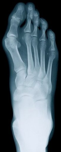 West Hollywood Podiatrist | West Hollywood Rheumatoid Arthritis | CA | Ilan Bazak DPM Professional Corporation |